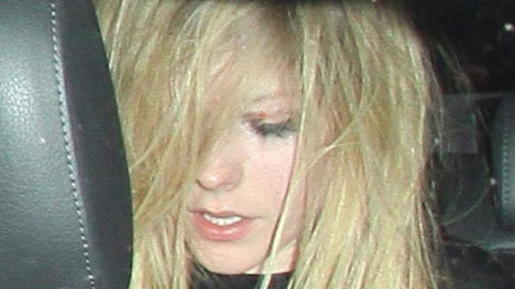 Esta es la foto que publica el portan TMZ, tomada poco después de que Avril fuera atacada.