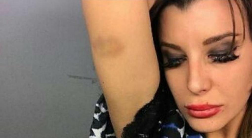 Fotos de Lhoan con golpes en la cara tras pelear con Charlotte