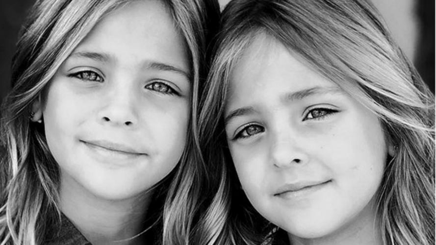 Son las gemelas más lindas del mundo y no vas a poder dejar de mirarlas