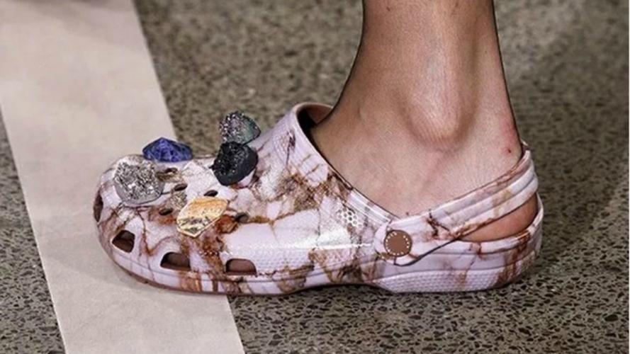 Cuentas en Instagram que muestra los zapatos más feos del mundo