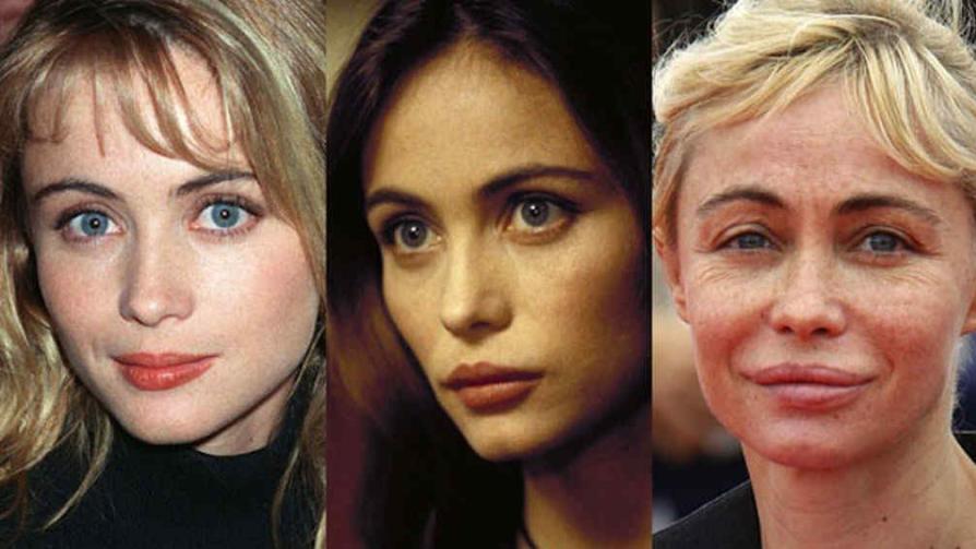 Famosos antes y después: cuando el botox juega una mala pasada ¿con ...